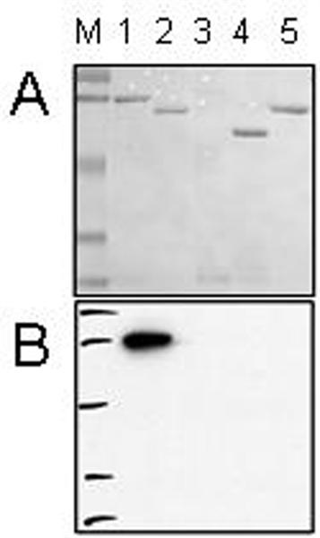 AKT1 Antibody | 2147 gallery image 1