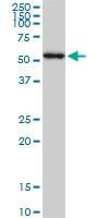AKT1 Antibody | 6F11 gallery image 1