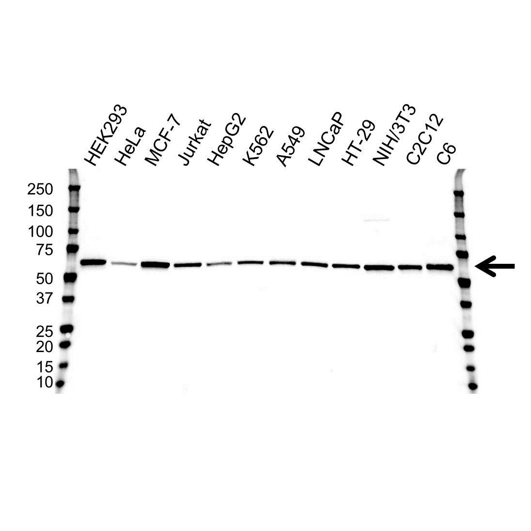AKT1 Antibody (PrecisionAb<sup>TM</sup> Antibody)   OTI4C11 gallery image 1