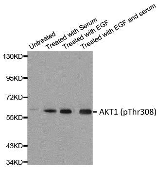 AKT1 (pThr308) Antibody gallery image 1
