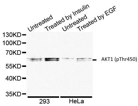 AKT1 (pThr450) Antibody gallery image 1