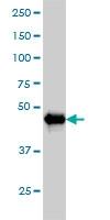 AKT2 Antibody | 1B3 gallery image 1