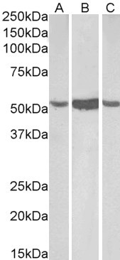 Aldehyde Dehydrogenase 1 Antibody gallery image 1