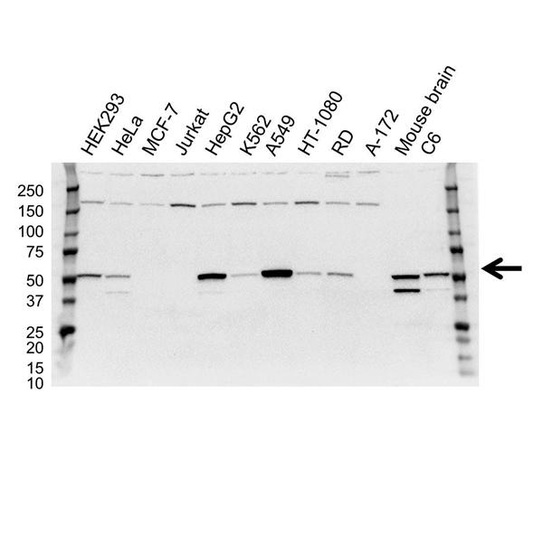 Aldehyde Dehydrogenase 2 Antibody (PrecisionAb<sup>TM</sup> Antibody) gallery image 1