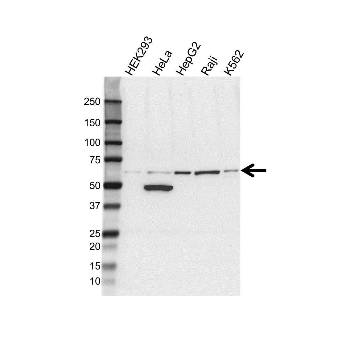 ALDH1B1 Antibody (PrecisionAb<sup>TM</sup> Antibody) gallery image 1