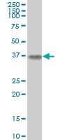 ALDOA Antibody | 3D9-6F3 gallery image 3