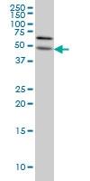 ALG12 Antibody | 5E3 gallery image 1