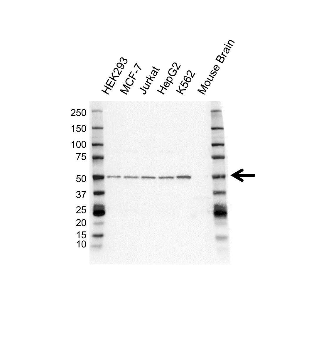 ALK1 Antibody (PrecisionAb<sup>TM</sup> Antibody) gallery image 1