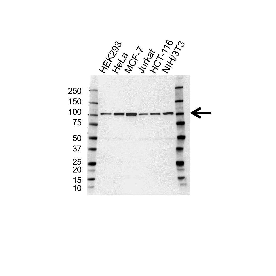 Alpha Actinin 4 Antibody (PrecisionAb<sup>TM</sup> Antibody) gallery image 1