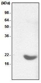 Alpha B Crystallin Antibody | 2E8 gallery image 1