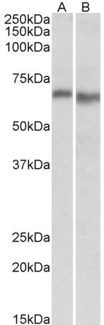 AMPK Alpha 2 Antibody gallery image 2