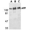 Amyloid Precursor Protein Antibody thumbnail image 1