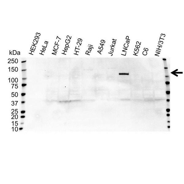 Androgen Receptor Antibody (PrecisionAb<sup>TM</sup> Antibody) gallery image 1