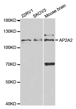 AP2A2 Antibody gallery image 1