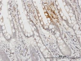 Apolipoprotein F Antibody | 1D5 gallery image 1