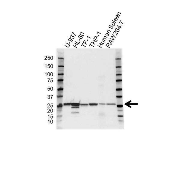Arhgdib Antibody (PrecisionAb<sup>TM</sup> Antibody) gallery image 1