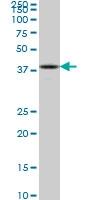 ASCL1 Antibody | 1C5 gallery image 1