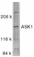 ASK1 Antibody gallery image 1