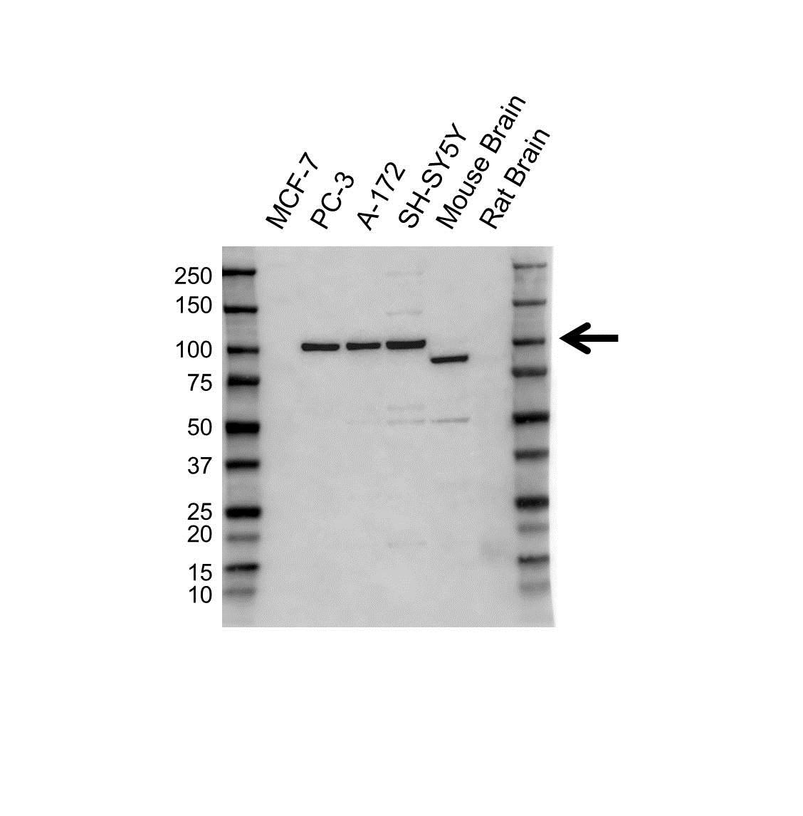 ATAXIN-1 Antibody (PrecisionAb<sup>TM</sup> Antibody) gallery image 1