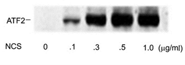 ATF2 (pSer490/pSer498) Antibody gallery image 1