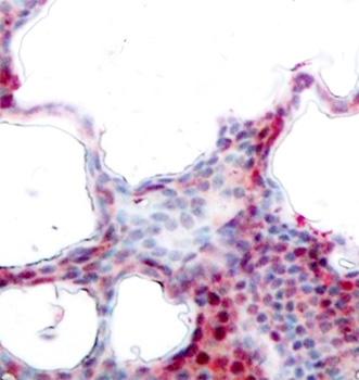 ATF2 (pSer44/pSer62) Antibody gallery image 2
