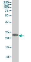 ATF3 Antibody | 6B8 gallery image 1