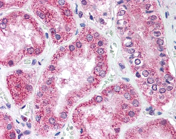 ATG1 Antibody gallery image 1