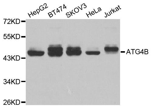 ATG4B Antibody gallery image 1