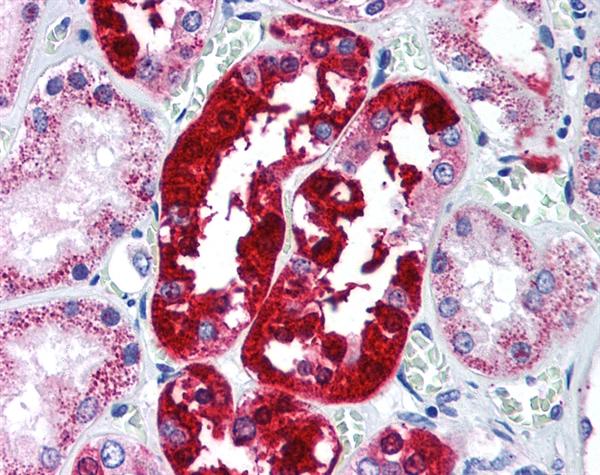 ATG5 Antibody gallery image 1