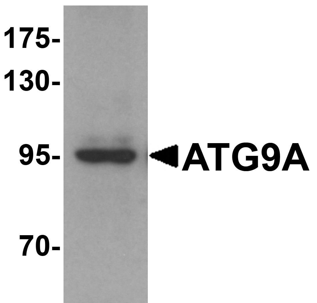 ATG9A Antibody gallery image 1