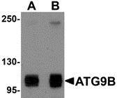ATG9B Antibody gallery image 1