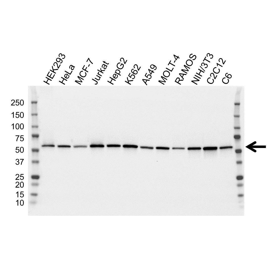 ATP6V1B2 Antibody (PrecisionAb<sup>TM</sup> Antibody)   OTI1E11 gallery image 1