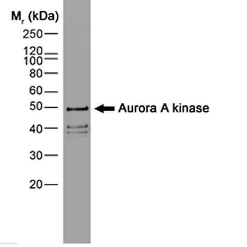 Aurora-A Kinase Antibody | 35C1 gallery image 1