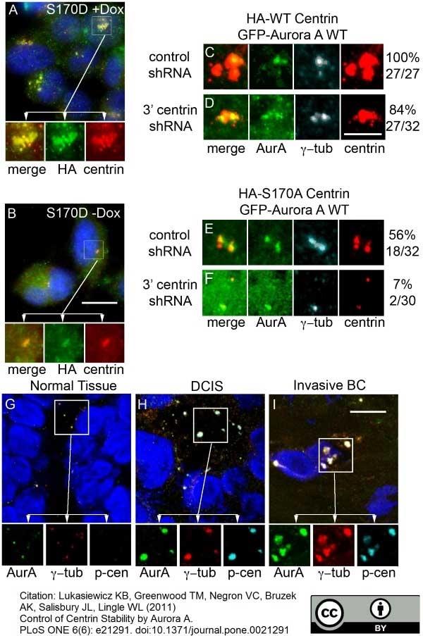 Aurora-A Kinase Antibody | 35C1 gallery image 4