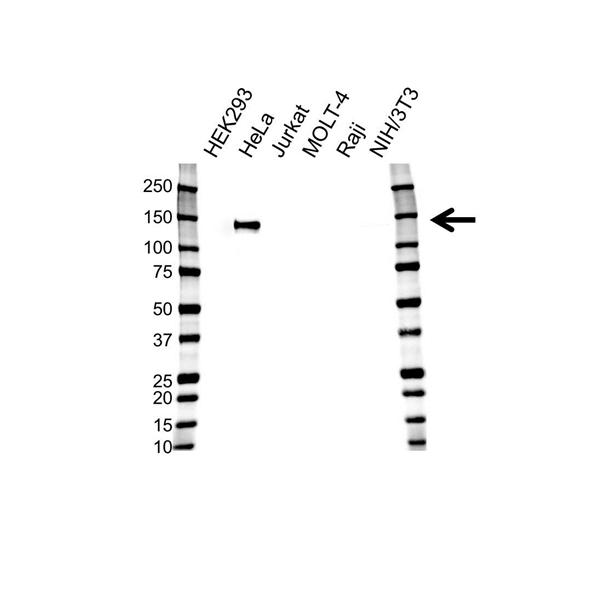 AXL Receptor Tyrosine Kinase Antibody (PrecisionAb<sup>TM</sup> Antibody) gallery image 1