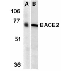 BACE2 Antibody gallery image 1