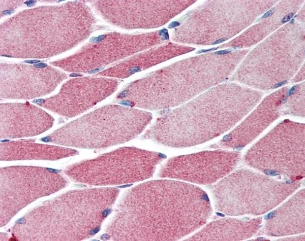 BACH1 Antibody gallery image 1