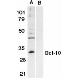 Bcl-10 Antibody gallery image 1