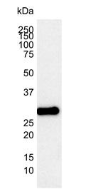 Bcl-2 Antibody | 100 gallery image 2