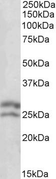 Bcl-2 Antibody gallery image 1