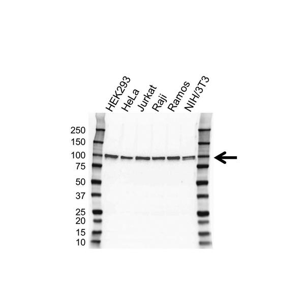 Bcl-6 Antibody (PrecisionAb<sup>TM</sup> Antibody) gallery image 1