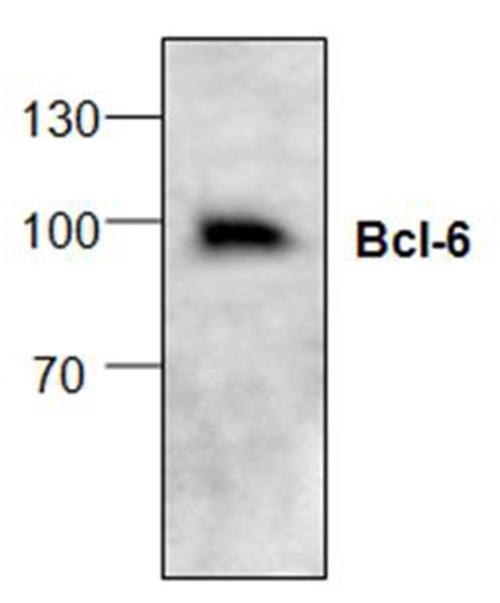 Bcl-6 Antibody gallery image 1