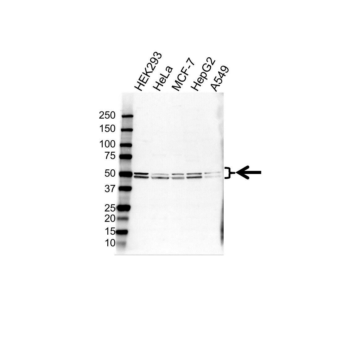 BETA-1 Adrenergic Receptor Antibody (PrecisionAb<sup>TM</sup> Antibody) gallery image 1