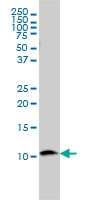 Beta 2 Microglobulin Antibody | 3F9-2C2 gallery image 3