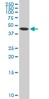 Beta Arrestin-2 Antibody   4D2 gallery image 1