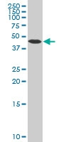 Beta Arrestin-2 Antibody | 4D2 gallery image 1