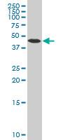 Beta Arrestin-2 Antibody   4D2 gallery image 2