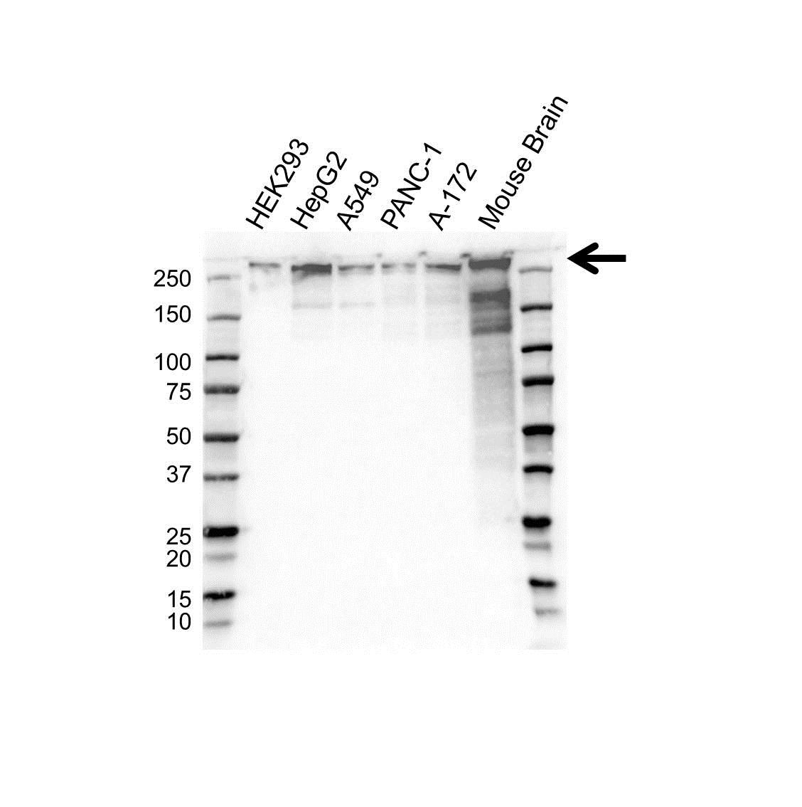 BETA-III Spectrin Antibody (PrecisionAb<sup>TM</sup> Antibody) gallery image 1