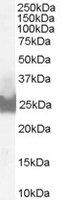 BID Antibody gallery image 1