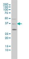 BMI-1 Antibody | 4E10-1C5 gallery image 1
